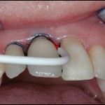 Gum Disease Treatment, Gum Disease Treatment